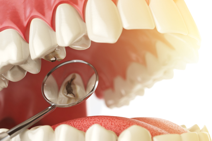 kan man se hål i tänderna